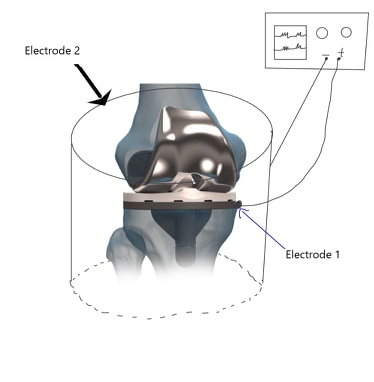 Design of the medical device to be wrapped around the knee.